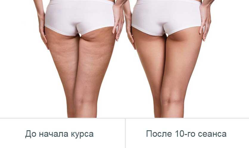 LPG массаж - фото до и после